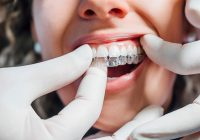 Clear Aligners for Teeth – Questions to ask